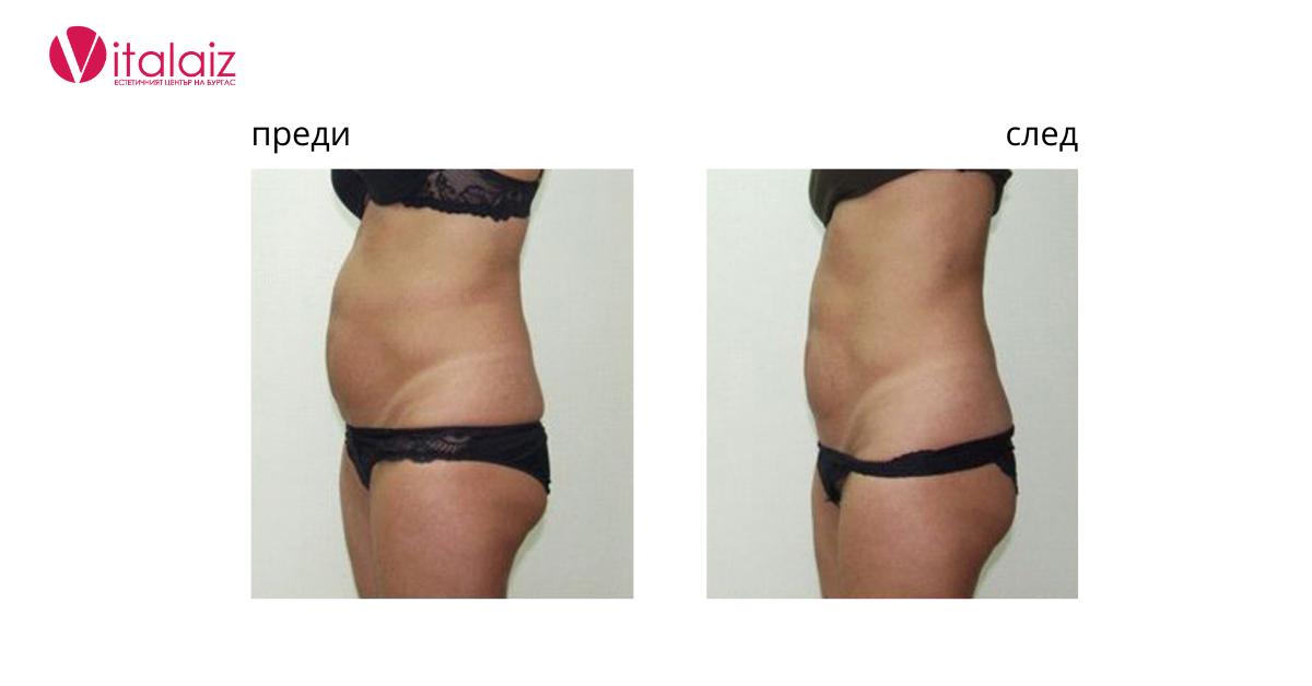 резултати преди и след кавитация бургас