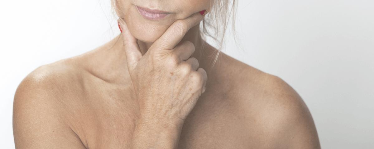 лечение на старчески петна