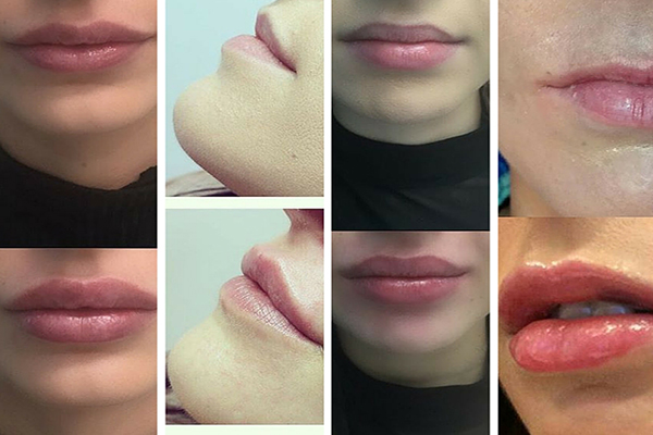 уголемяване на устни бургас