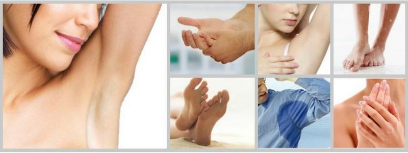 хиперхидроза лечение