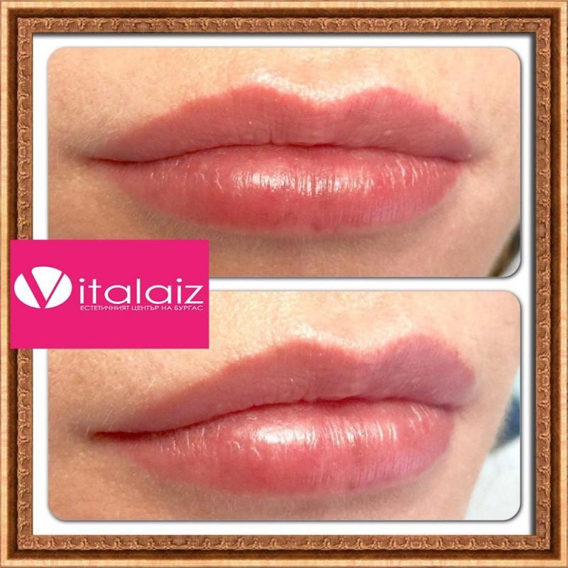Хиалуронова киселина в устните преди и след