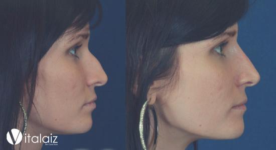 Корекция на нос