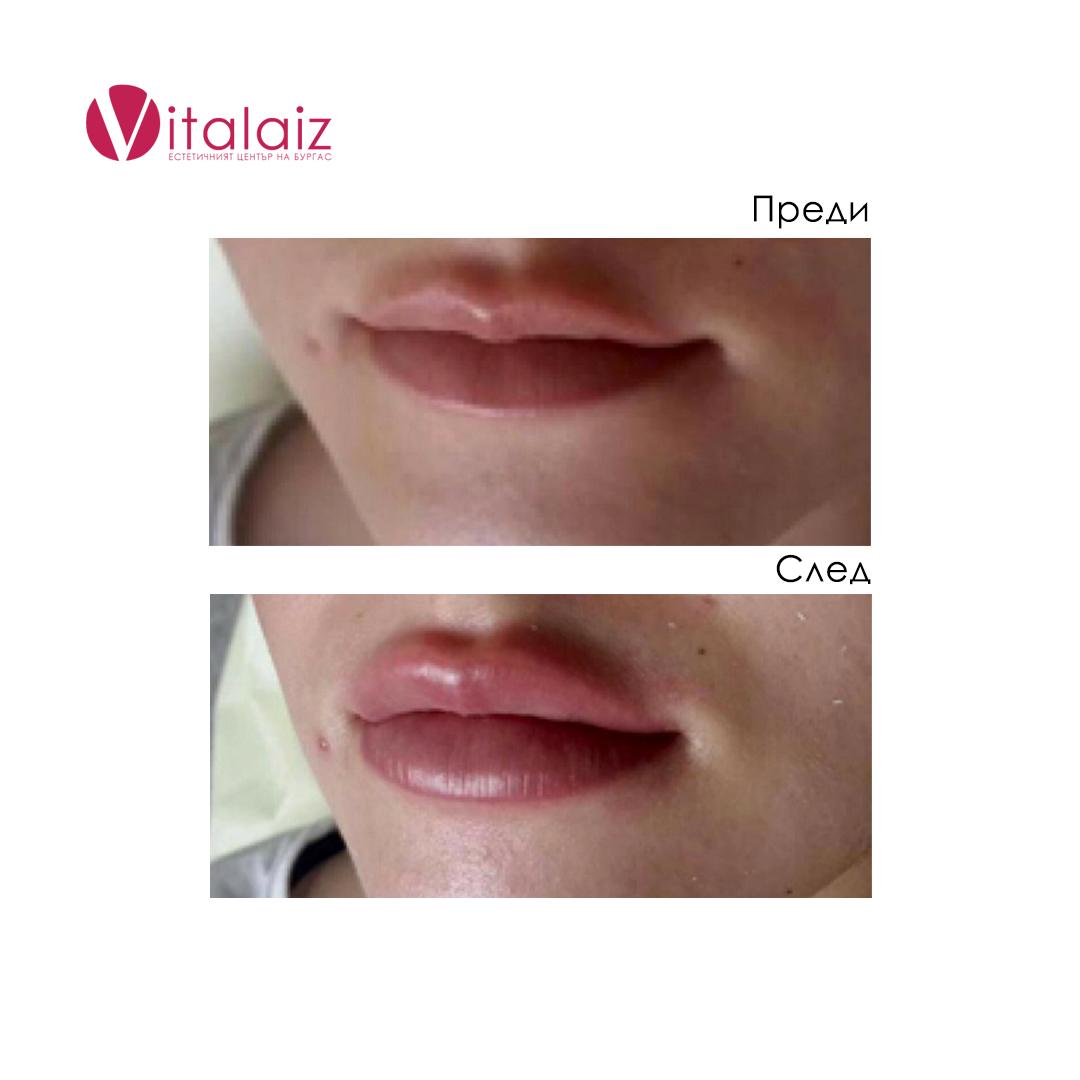 резултати след филър в устните