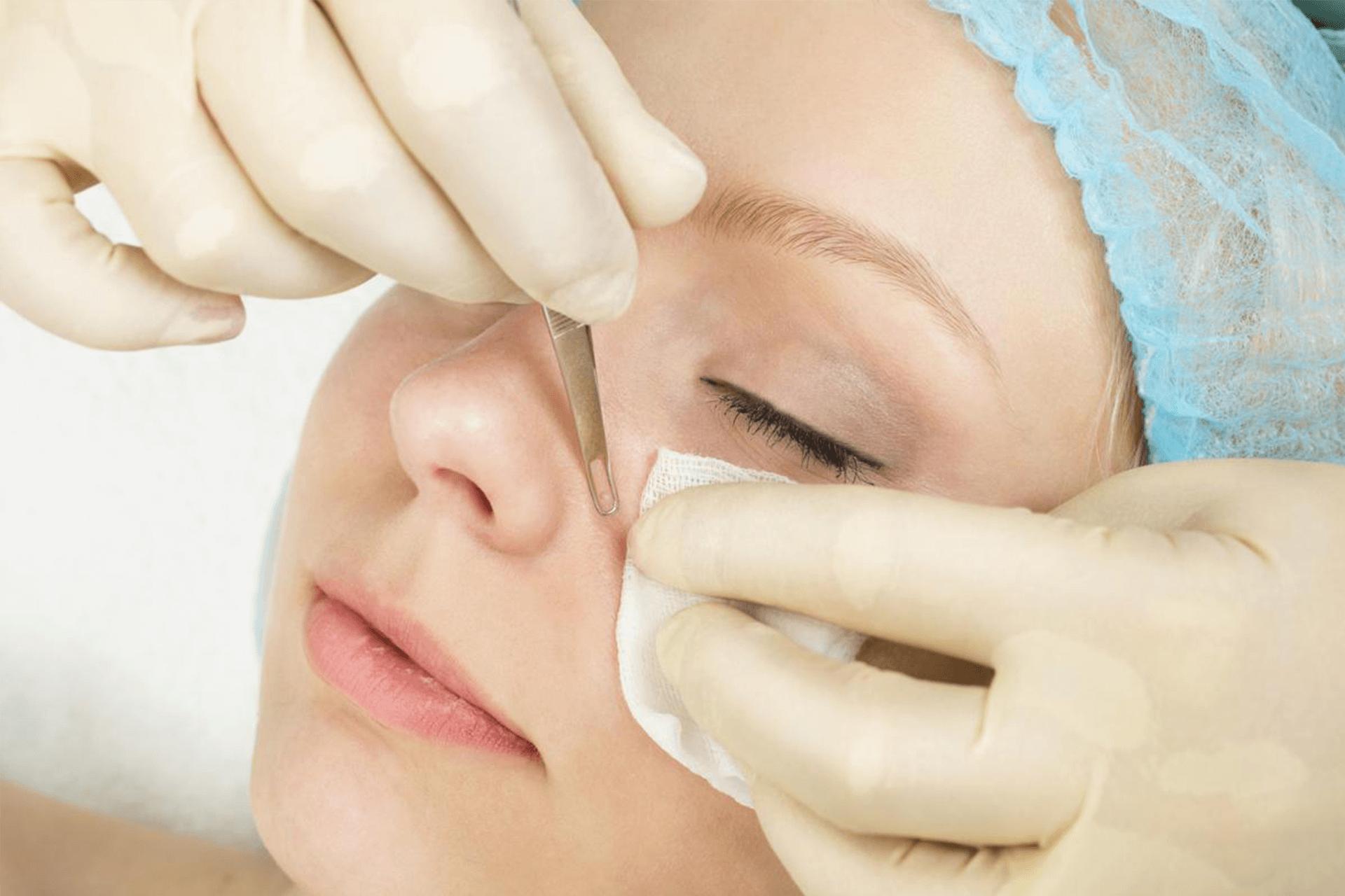 Почистване на лице Бургас